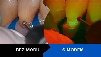 Fluorescenční mód